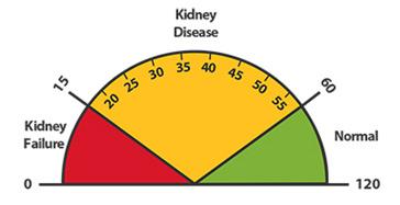 kidney disease measurement